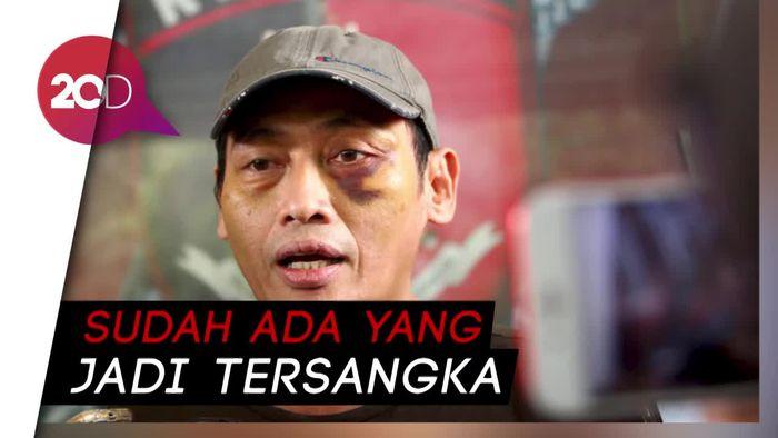 Dalami Kasus Penculikan Ninoy Karundeng, Polisi Periksa Sekjen PA 212