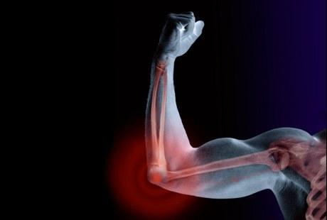 11 Cara Meningkatkan Kekuatan Tulang