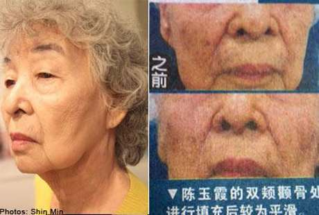 Nobody Wants Looks Old, Granny Age 83 Years no Plastic Surgery