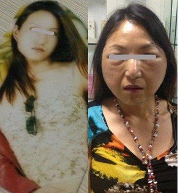 Duh, Young Women Similar This fact grandmothers Post Plastic Surgery