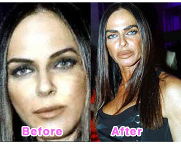 Before Plastic Surgery Side Effects Before It is feared