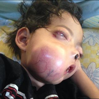 Tolong! Bocah Pengidap Tumor Ganas di Bandung Ini Butuh Bantuan