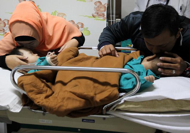 Operasi Pemisahan Bayi Kembar Siam Bima-Arjuna