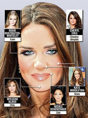 Hidung Kate Middleton Jadi Favorit di Klinik Operasi Plastik