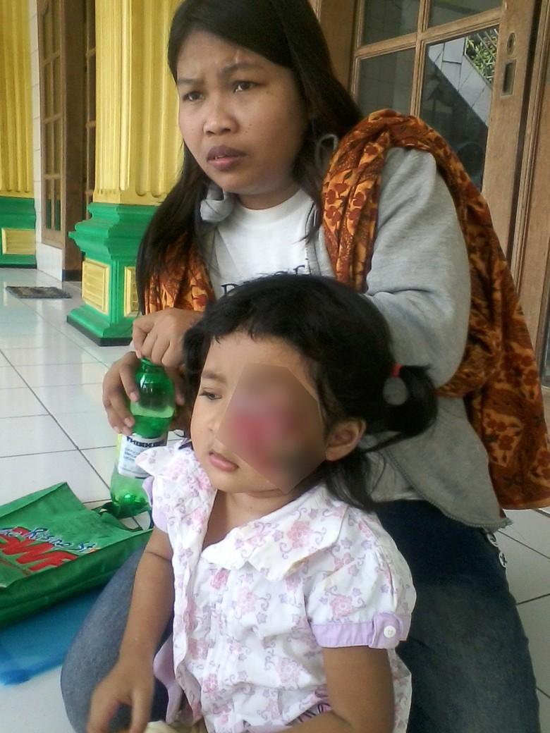 Tolong! Balita di Depok Menderita Kanker Mata dan Butuh Biaya Operasi