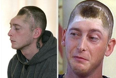 5 Orang ini masih hidup meski tengkorak kepalanya tinggal setengah