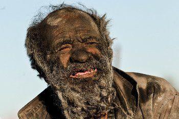 Amou Haji, Manusia Terkotor Sejagat yang Tak Pernah Mandi Selama 60 Tahun