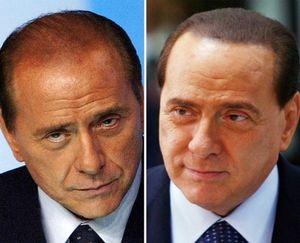 Silvio Berlusconi: Skandal Seks dan Permak Wajah