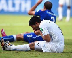 Ramai-ramai Manfaatkan Gigitan Suarez untuk Beriklan