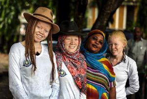 Organnya Dipercaya Berkhasiat, Gadis Albino Diculik Ayahnya Sendiri
