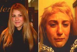 Rambut Nyaris Botak, Model Cantik Tuntut Salon Terkenal di NY Rp 19 M