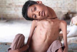 Potret Mahendra, Bocah dengan Leher 'Menggantung' dan Tak Bisa Tegak
