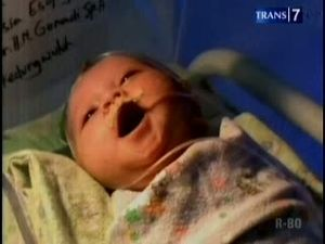 Bayi Kelainan Saluran Pencernaan