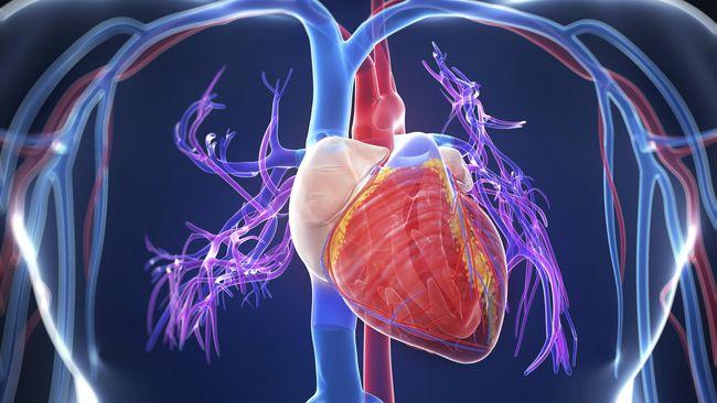 Mengenal Prosedur Pasang Ring Jantung Yang Dijalani Jk