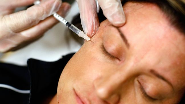 Suntik botox dikenal untuk mengencangkan kulit wajah. Namun, kini remaja di bawah usia 20 tahun juga mulai getol menggunakan perawatan tersebut.