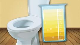 Ketahui Warna Urine dan Artinya untuk Ungkap Kondisi Tubuh