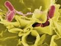 Peneliti Kembangkan Alat Pendeteksi Bakteri di Hitungan Menit