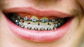 5 Kesalahan yang Sering Dilakukan saat Pakai Kawat Gigi