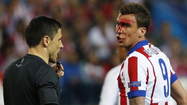 Tak ada hukuman dari wasit ketika pemain belakang Real Madrid, Dani Carvajal, menggigit sang penyerang lawan, Mario Mandzukic.