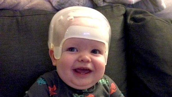 Matthew Boler, lahir 16 Juli 2014 di Texas Children's Pavilion for Women. Dia tampak begitu mirip dengan kakak perempuannya, kecuali bentuk kepalanya.