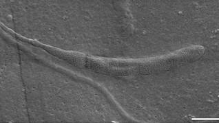 Fosil Sperma Tertua Ditemukan di Kepompong