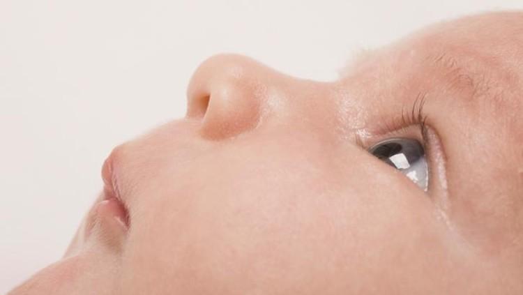 Tidak hanya lansia yang berpotensi kena katarak, bayi juga bisa lho, Bun. Begini cara mendeteksi dininya.