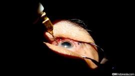 Mengenal Katarak dan Trik Jaga Kesehatan Mata