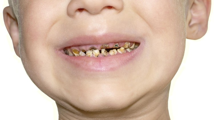 Anak sudah rajin gosok gigi, tapi kenyataannya giginya gampang banget berlubang. Duh, kenapa ya?