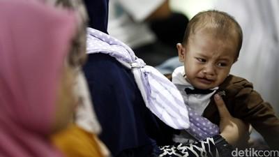 Bunda, Ketahui Penyebab dan Risiko Bibir Sumbing pada Bayi