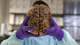 Tak Hanya Kelamin, Infeksi Sifilis Juga Menyerang Otak