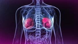 Terapi Hormon pada Wanita Tingkatkan Risiko Kanker Payudara