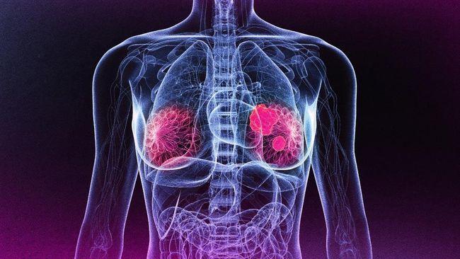 Global Burden of Disease Cancer Collaboration menyebutkan, sepanjang 2015 tercatat 17,5 juta kasus kanker di dunia, yang menyebabkan 8,7 juta kematian.