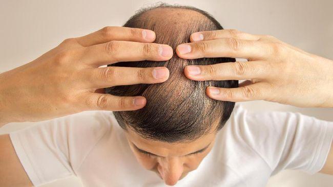 Generasi milenial sangat rentan mengalami kebotakan rambut seiring dengan faktor stres dan diet ketat yang sering mereka lakukan.