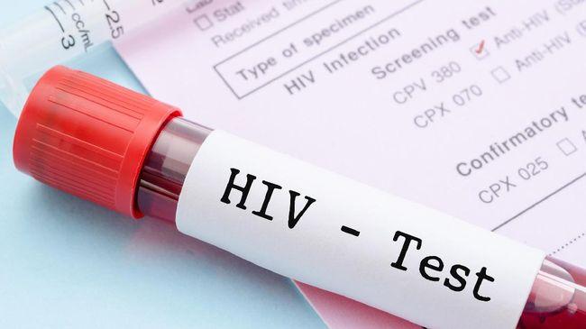 WHO mengingatkan hampir separuh orang dengan HIV (ODH) di dunia tidak mengetahui status infeksi mereka.