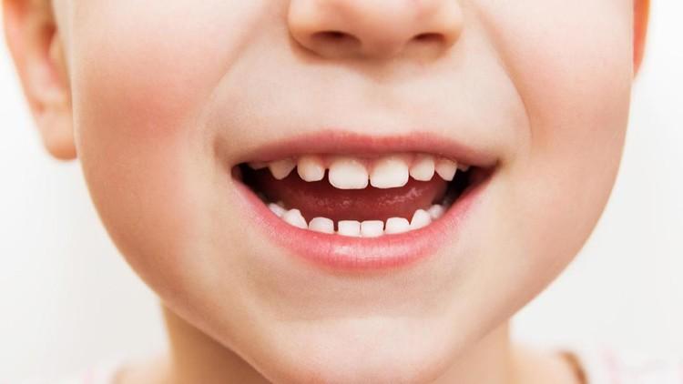 Sejak kapan Bunda dan Ayah mengajak si kecil rutin cek kesehatan gigi?
