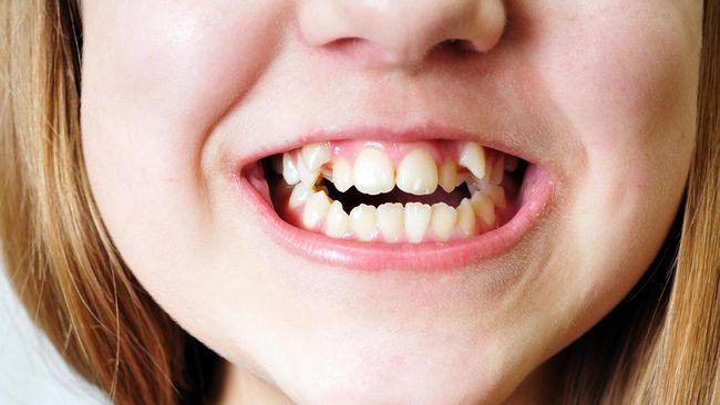 Tak bisa dimungkiri, masalah gigi berlubang berkaitan erat dengan asupan makanan. Camilan apa saja yang bisa buat gigi berlubang?