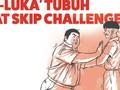 'Luka-luka' Tubuh Akibat Skip Challenge