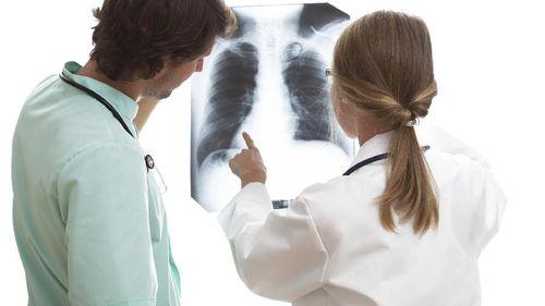 Penampakan Saluran Napas yang Tertutup Kanker, Masih Mau Merokok?