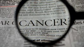 Data Kematian Akibat Kanker Paru Meningkat 18 Persen di 2020