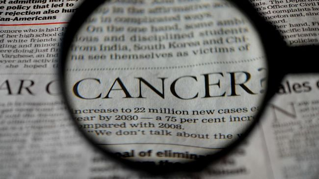 Kelebihan berat badan atau obesitas bakal menjadi penyebab utama penyakit kanker pada wanita.