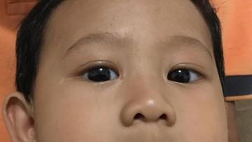 Mata Bayi Kena Flash Kamera, Aman Nggak Ya?