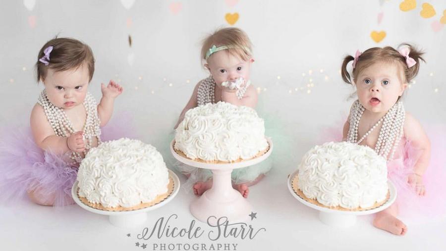 Ada Cerita Spesial di Balik Foto 3 Bayi dengan Down Syndrome Ini