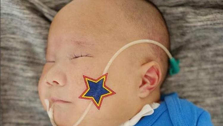 Bayi yang lahir dengan trisomy 13 itu meninggal dunia di usianya yang masih 7 bulan.