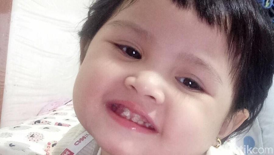 Kegiatan Sederhana Ini Bisa Cegah Gigi Anak Berlubang