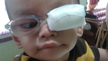 'Bayangan Awan di Mata Bayiku Itu Ternyata Tanda Katarak'