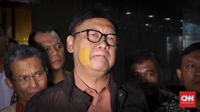 Menteri Dalam negeri Tjahjo Kumolo menyebut seharusnya para kepala daerah telah memahami area-area rawan korupsi, sehingga tidak boleh lengah.