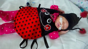 Super Cute! Penampilan Bayi Prematur Berkostum Halloween