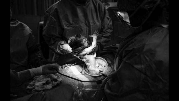Begini momen melahirkan Maria, seorang bunda yang didiagnosis kanker payudara saat hamil anak ke-empatnya.