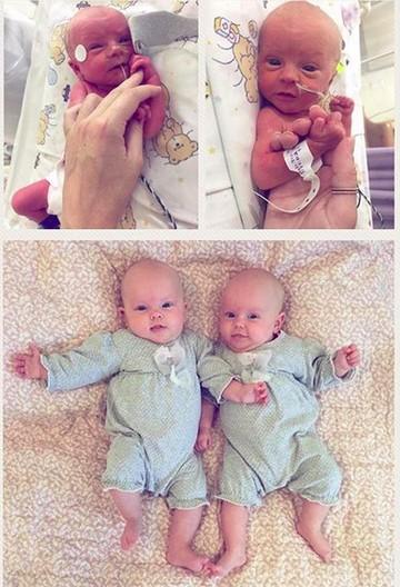 Dulu Lahir Prematur Kini Bocah Bocah Ini Lucu Dan Menggemaskan Foto 1