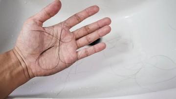 Adakah Bunda yang Rambutnya Rontok Parah Usai Melahirkan?